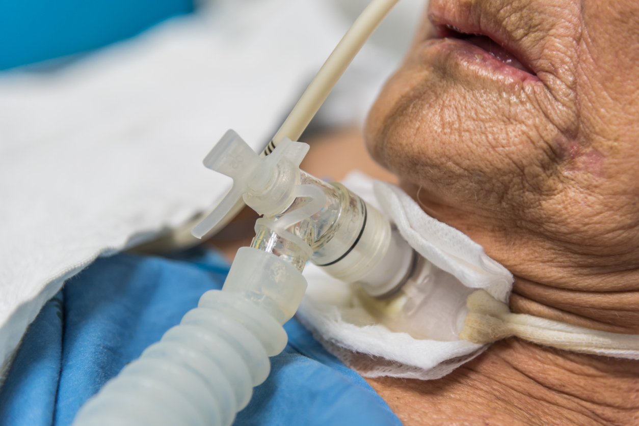 Patient mit Trachealkanüle Heimbeatmung